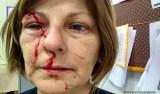 Adolescente que agrediu professora em SC se entrega à Justiça