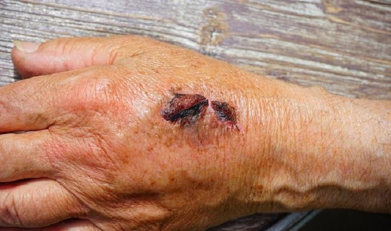 Cientistas criam cola capaz de reconstruir pele lesionada em 60 segundos