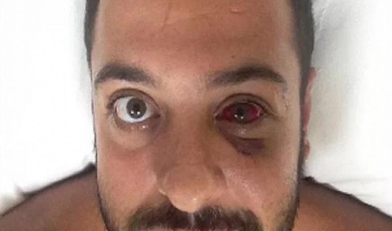 Ex-CQC, Tomer Sovaia é agredido em assalto e passa por cirurgia