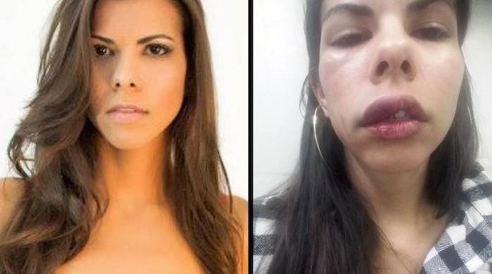 """Após ser agredida por namorado, vendedora posta foto na web como alerta, """"é hora de acordar"""""""