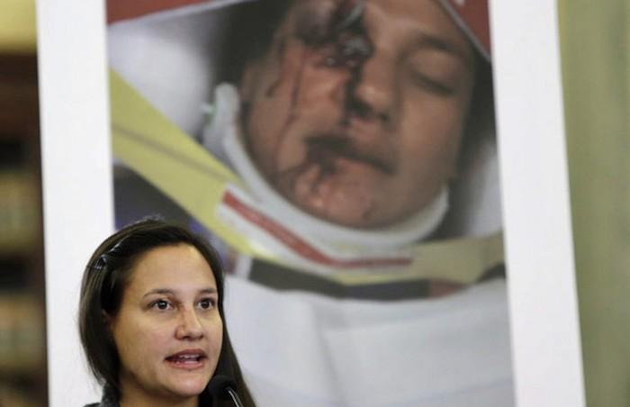 Vítima de 'airbag mortal' do Civic faz apelo para proprietários atenderem recalls