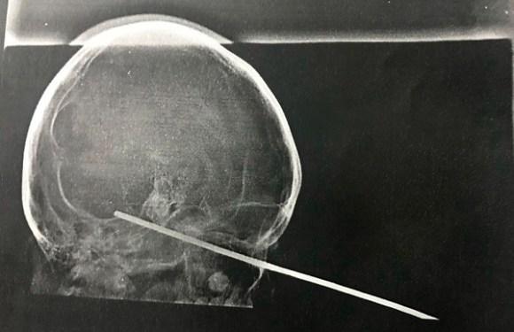 Menino de 8 anos tem espeto cravado no olho durante brincadeira com amigo na BA