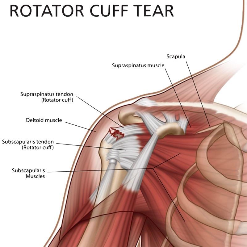 Shoulder Pain treatment Specialists - Delhi Pain ...