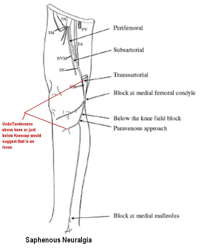 Nerve Block: July 2015