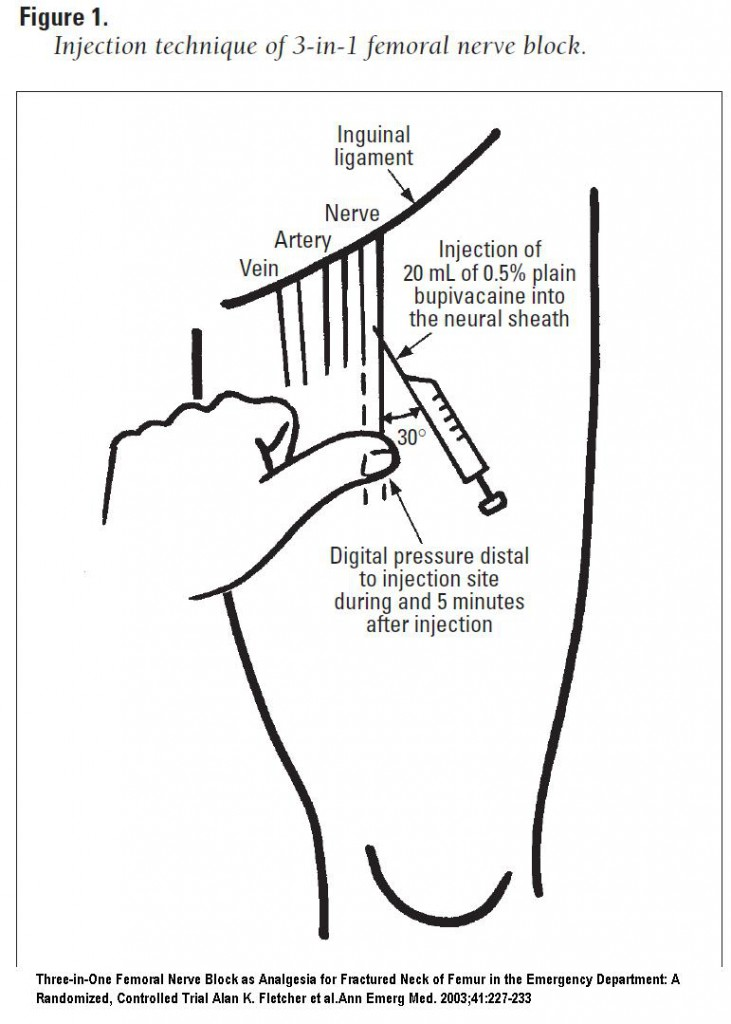 Procedures Club: Ultrasound Guided Nerve Blocks, Part One