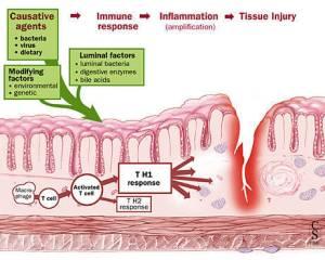 Crohns Disease  Pain Resource