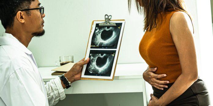 Diagnosing Endometriosis