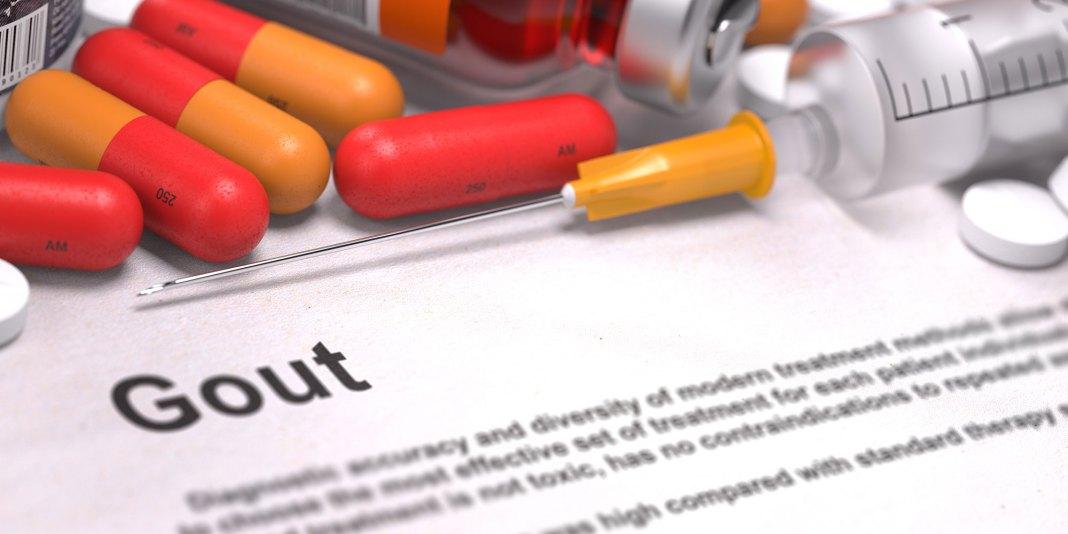 Gout Management Pain Techniques