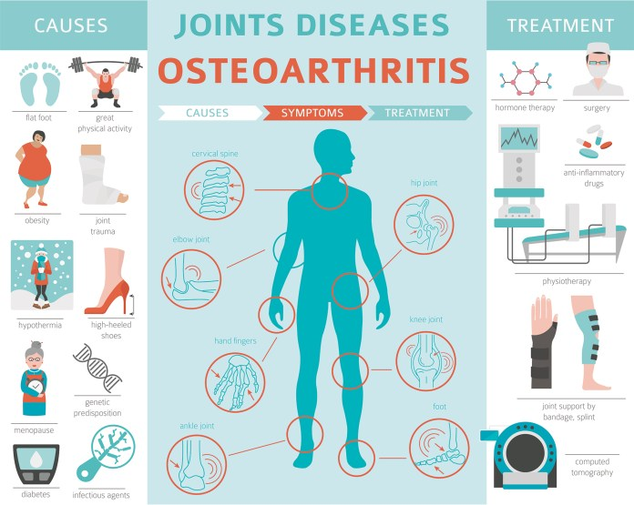 Osteoarthritis causes and symptoms