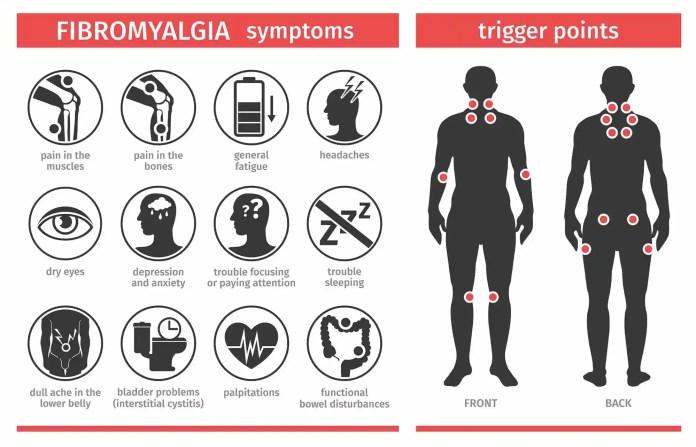 Signs of Fibromyalgia Chart