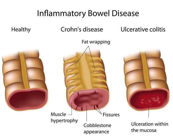 Understanding Crohn's Disease Infographic