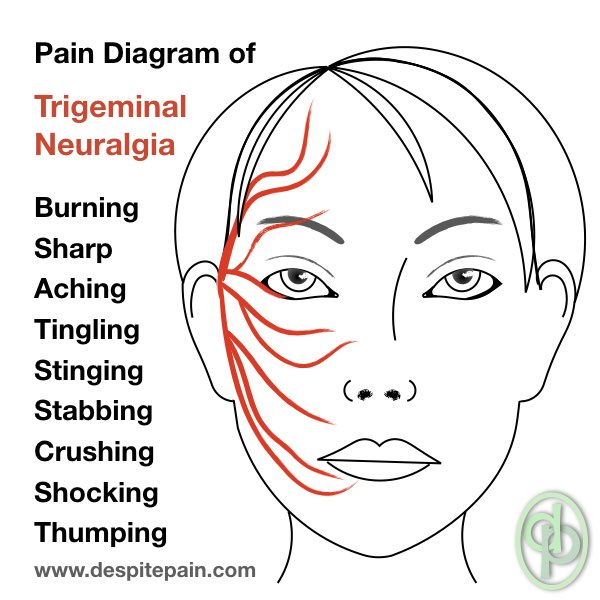 atypical trigeminal neuralgia facial pain diagram of trigeminal neuralgia