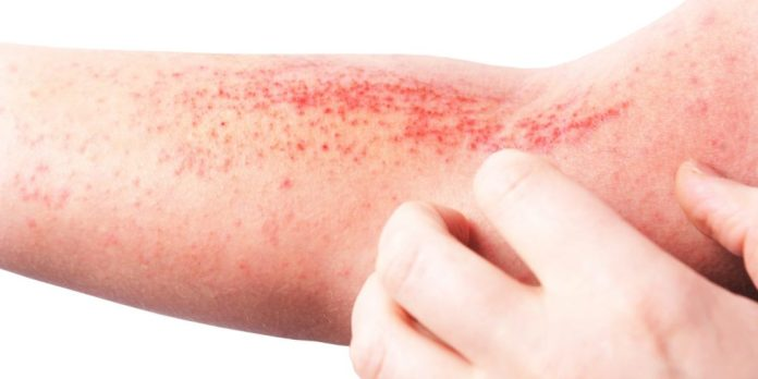 skin sensitive to touch with rash