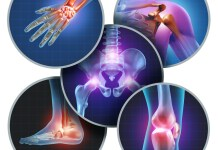 joint pain areas