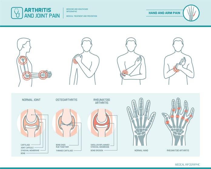what is arthritis chart