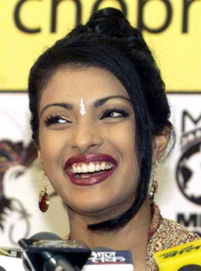 priyanka-chopra-before-surgery