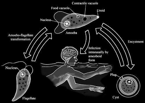 Naegleria fowleri (Brain-eating amoeba) Urdu