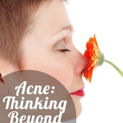 Hormonal Acne Diagram 4 Way Round Trailer Connector Wiring Thinking Beyond Hormones A Guest Post From My Most Trusted While It S True That Are Big Part Of Equally There