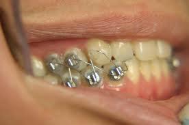 cosido mandibular