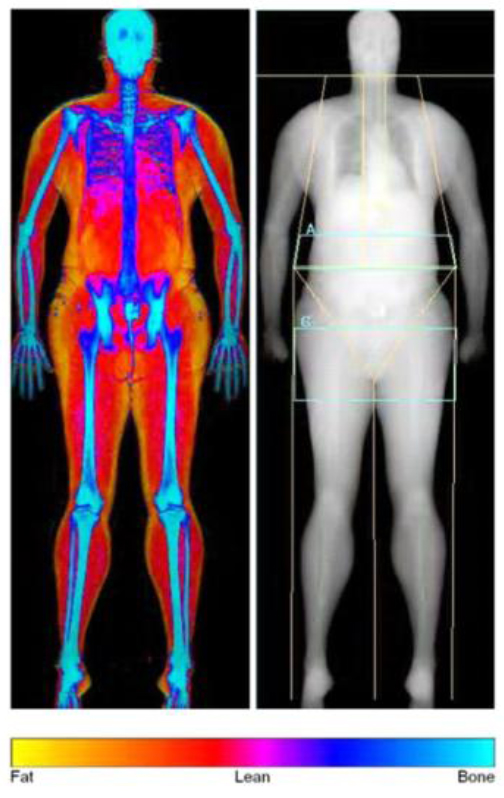 your bmi – is it fat or muscle? surprising pictures – your weight, Muscles