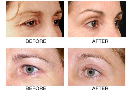 Thermage Thermacool skin tightening treatments. PA NJ and NY