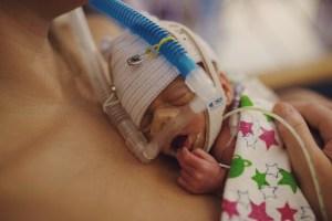 Birth story   Preemie Twins born at 30 weeks   NICU