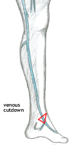 The Leg and Dorsum Of Foot