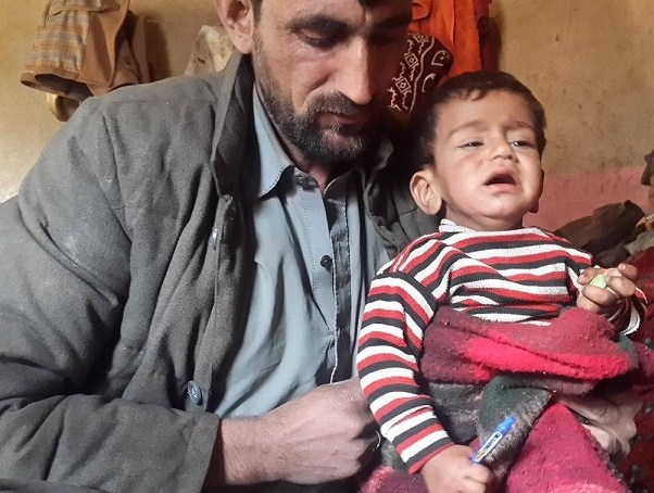Suspected polio case reported from Thore Valley, Diamer