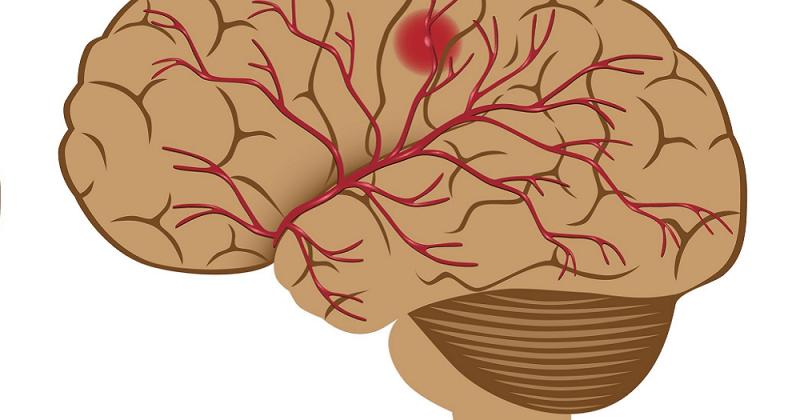 hjerneslag-kosthold