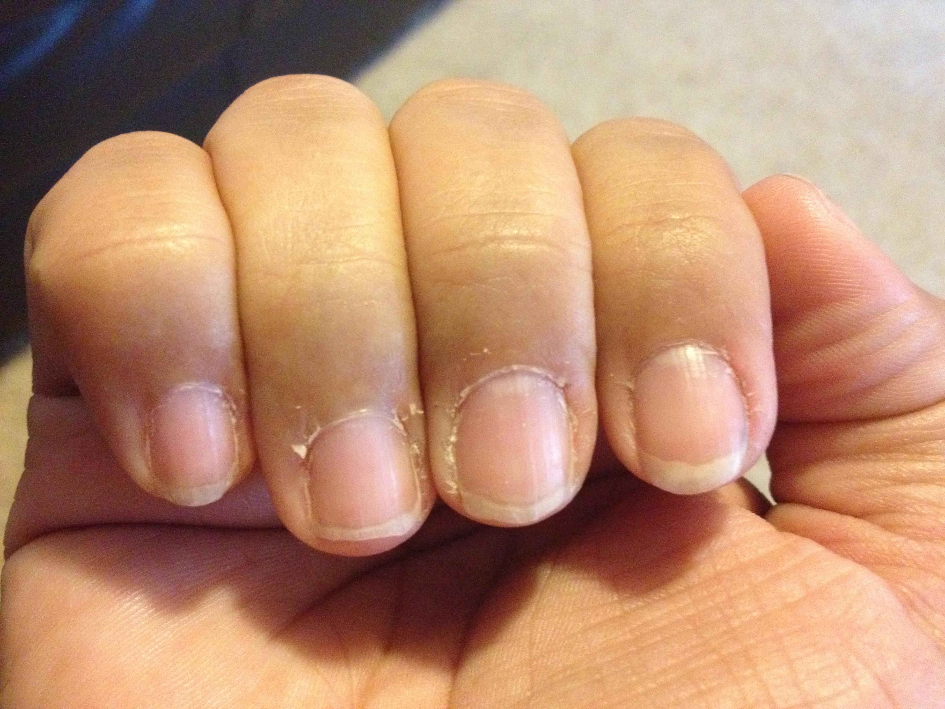 Dry Fingernails With Ridges