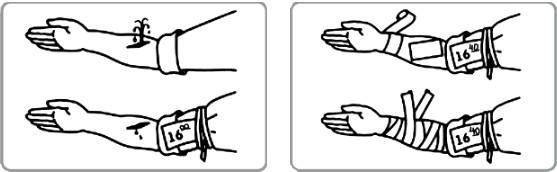 Рекомендации с пиктограммами для оказания первой помощи работникам. Аптечка первой помощи работникам Пиктограммы по использованию аптечки первой помощи