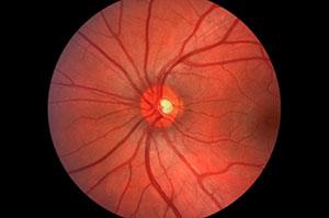 Pensacola Diabetic Retinopathy, Panhandle Laser Vision Institute