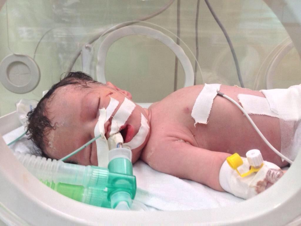 Bayi Gaza lahir dari Ibu yang telah meninggal 3