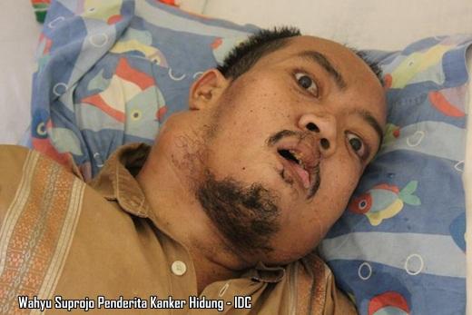 Wahyu Suprojo Penderita Kanker Hidung - IDC
