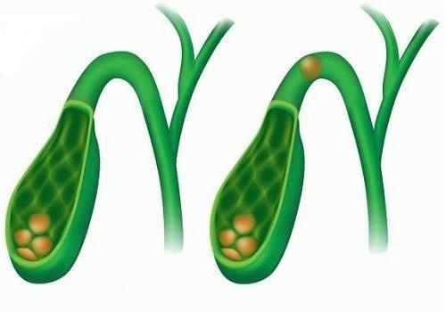 pastile eficiente din toate tipurile de viermi potkozni paraziti kod pasa