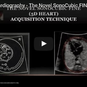 5D Ultrasound