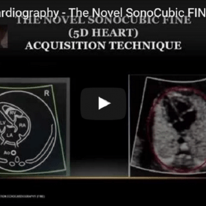 Fetal Echocardiography - The Novel SonoCubic FINE (5D Heart)