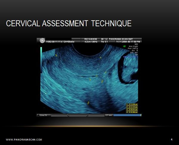 Panorama Scan | Ultrasound Course Lectures Preview
