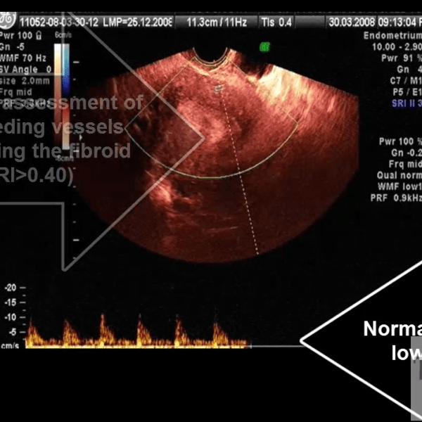 fibroid-6
