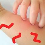 アトピー性皮膚炎で腕が痒い