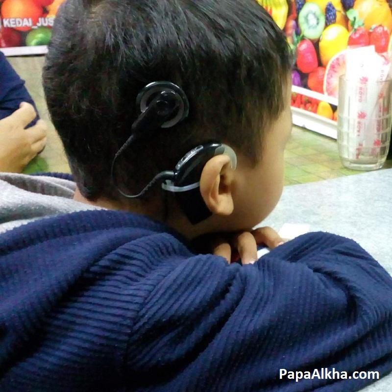 Foto Alkha yang menggunakan implan koklea. Hanya terlihat prosesor suara yang berada di belakang telinga, kabel, dan koil bermagnet yang menempel di samping kepala.