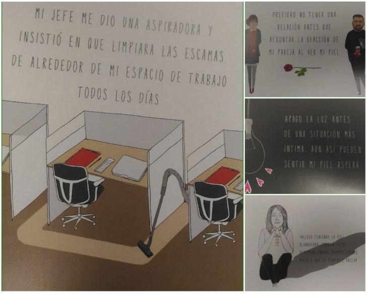 collage con cuatro postales de las que facilitaron en #aclaralapsoriasis
