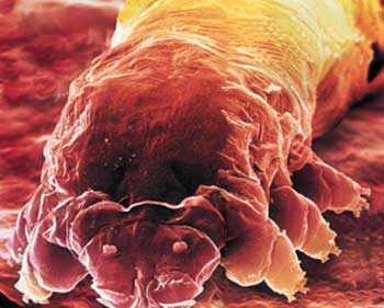 demodex-11.jpg