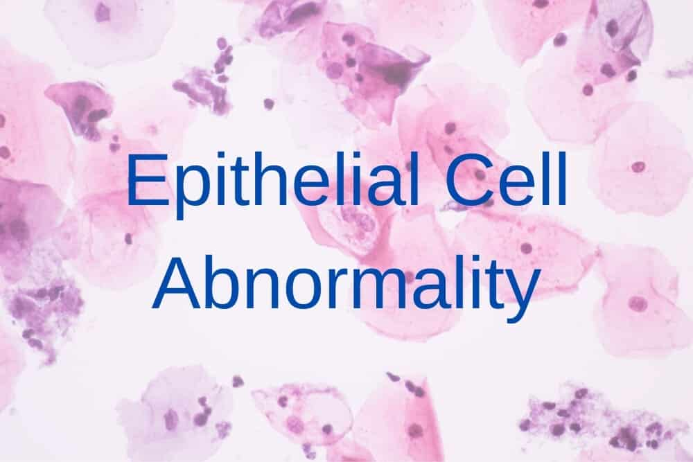 Epithelial Cell Abnormality
