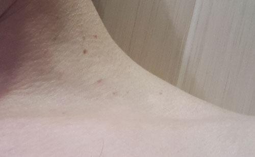 Нитевидные бородавки, или акрохорды: причины, лечение