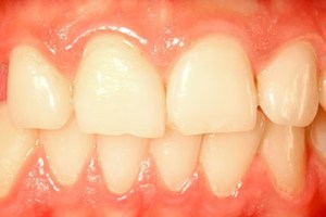 periodontist salem marblehead swampscott