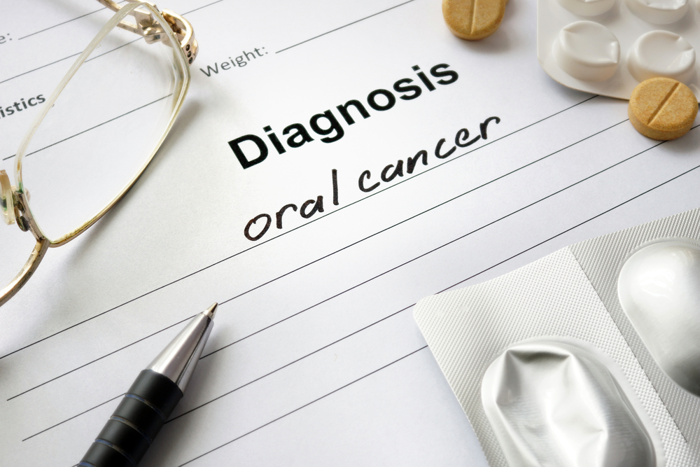 Beware, Most Common Symptoms of Oral Cancer