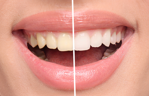 5 Reasons to Consider Teeth Whitening