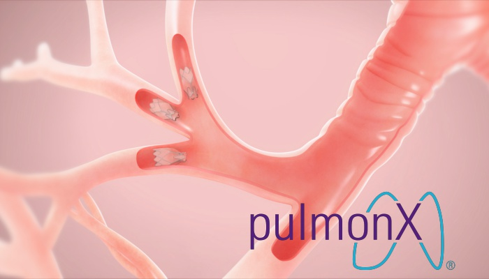 IPO Pulmonx ( IPO LUNG )