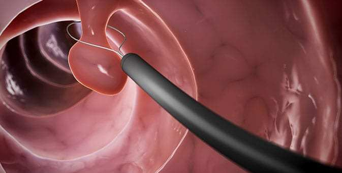 animation of polypectomy